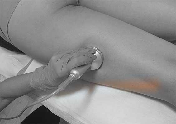 Anticelulitna masaža i vakuum