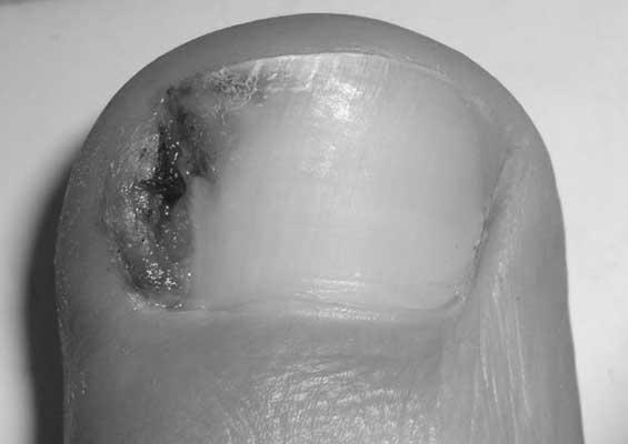 Odstranjivanje uraslog nokta